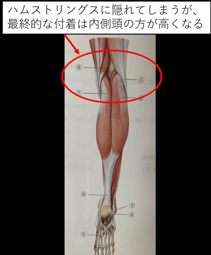 腓腹筋は外側頭に比べ内側頭が高くなる